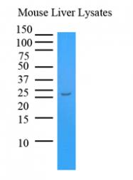 AM09365PU-N - Transthyretin / Prealbumin