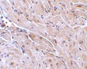 AP30944PU-N - RNF216