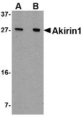 AP30038PU-N - AKIRIN1