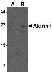 AP30039PU-N - AKIRIN1