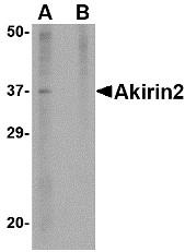 AP30040PU-N - AKIRIN2 / C6orf166