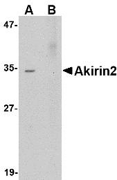 AP30041PU-N - AKIRIN2 / C6orf166