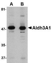 AP30043PU-N - ALDH3