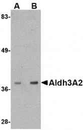 AP30044PU-N - ALDH3A2 / ALDH10