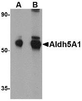 AP30045PU-N - ALDH5A1 / SSADH