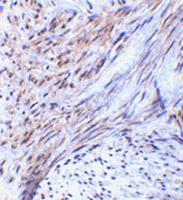 AP30952PU-N - TRIM5 / RNF88