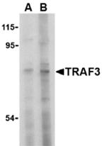 AP30937PU-N - TRAF3 / CRAF1