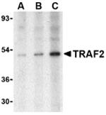 AP30935PU-N - TRAF2 / TRAP3