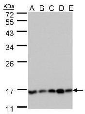 AP19062PU-N - PPP3R1 / Calcineurin B
