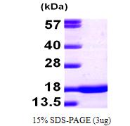 AR09556PU-L - Alpha-Synuclein / SNCA