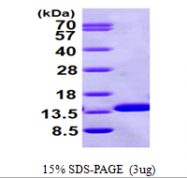 AR09561PU-N - Beta-2-microglobulin