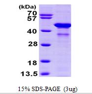AR09562PU-L - Glutamine synthetase