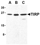 AP30889PU-N - TICAM2 / TRAM