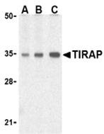 AP30887PU-N - TIRAP