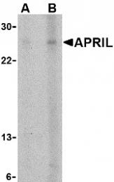 AP30074PU-N - CD256 / APRIL