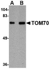 AP30930PU-N - TOMM70A