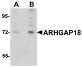 AP30079PU-N - ARHGAP18