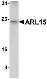 AP30080PU-N - ARL15 / ARFRP2