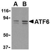 AP30088PU-N - ATF6 alpha