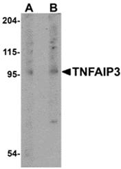 AP30922PU-N - TNFAIP3