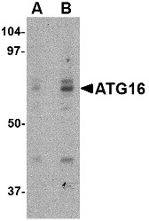 AP30091PU-N - APG16L / ATG16L1