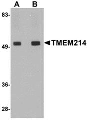 AP30915PU-N - TMEM214