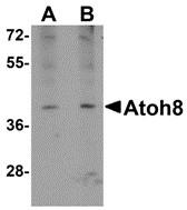 AP30095PU-N - ATOH8