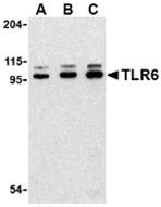 AP30904PU-N - CD286 / TLR6