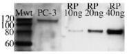 AM20163PU-N - HIP1