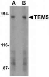 AP30871PU-N - GPR124 / TEM5