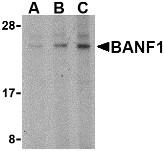AP30119PU-N - BANF1
