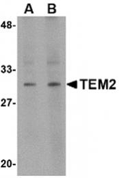 AP30868PU-N - RASD2 / TEM2
