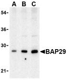 AP30120PU-N - BCAP29 / BAP29