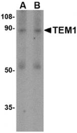 AP30867PU-N - CD248 / TEM1