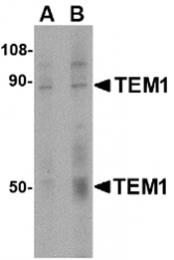 AP30866PU-N - CD248 / TEM1