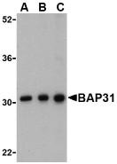 AP30123PU-N - BCAP31 / BAP31