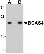 AP30127PU-N - BCAS4