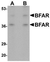 AP30141PU-N - BFAR / RNF47