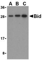 AP30147PU-N - BID