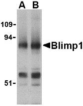 AP30155PU-N - PRDM1 / BLIMP1