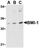 AP30158PU-N - BMI-1 / RNF51
