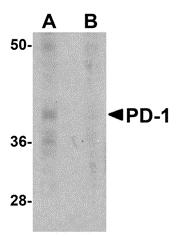 AM20148PU-N - CD279 / PD1