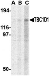 AP30859PU-N - TBC1D1