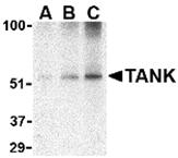 AP30857PU-N - TANK / ITRAF