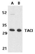 AP30855PU-N - CD267 / TACI