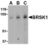 AP30167PU-N - BRSK1
