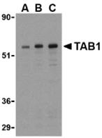 AP30853PU-N - TAB1 /  MAP3K7IP1