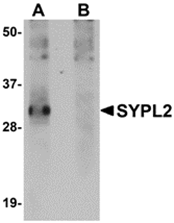 AP30852PU-N - SYPL2
