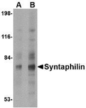 AP30849PU-N - Syntaphilin / SNPH
