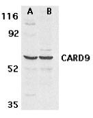 AP30185PU-N - CARD9